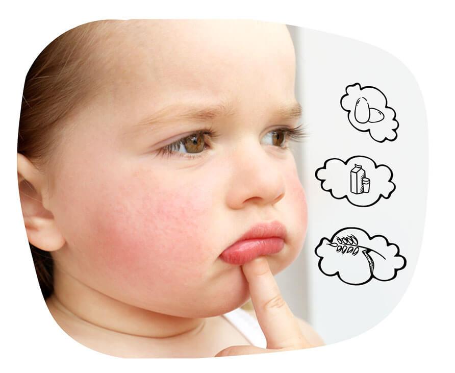 Jak leczyć alergię pokarmową?