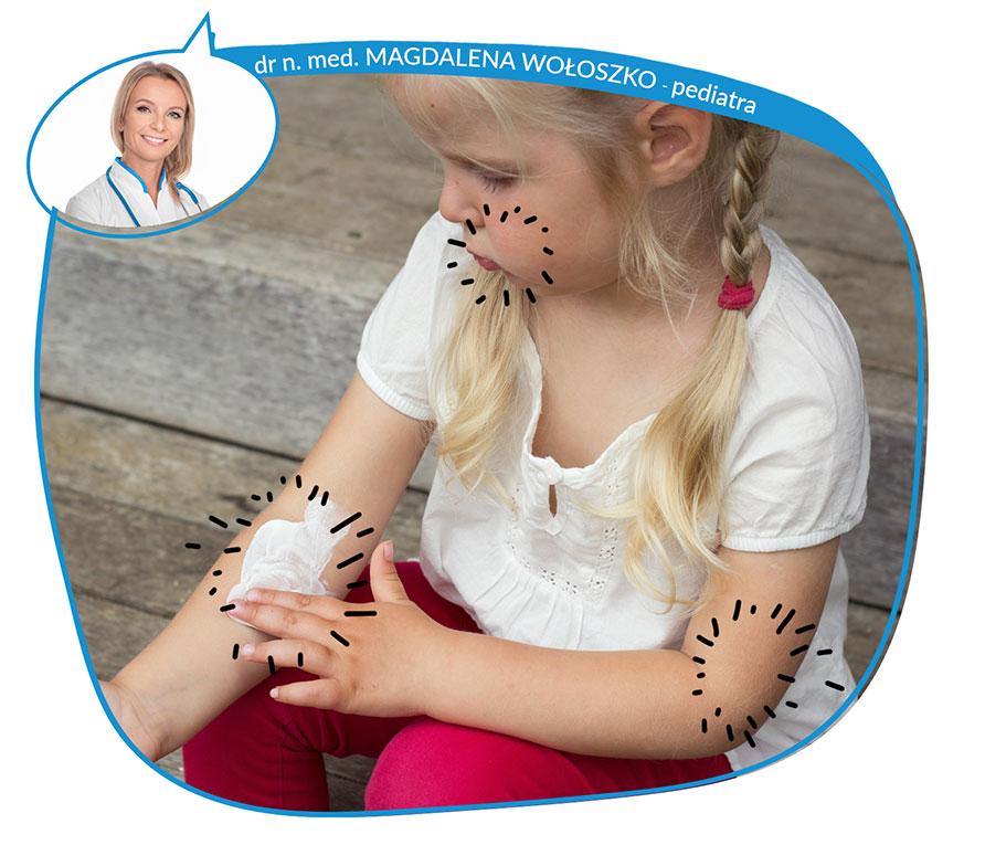 Problemy dnia codziennego chorych z atopowym zapaleniem skóry
