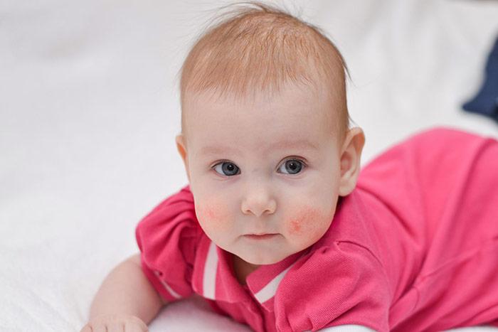 Atopowe zapalenie skóry u małego dziecka
