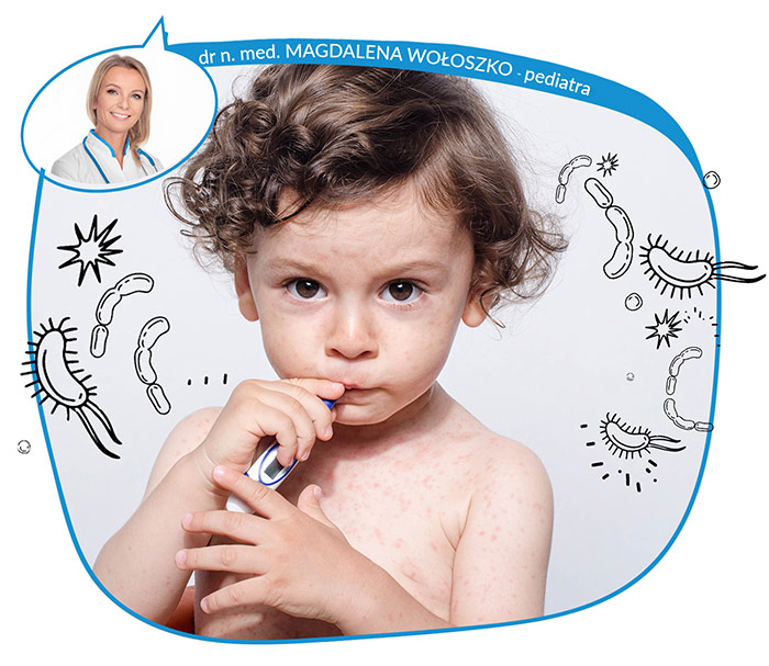 Najczęstsze choroby zakaźne wieku dziecięcego