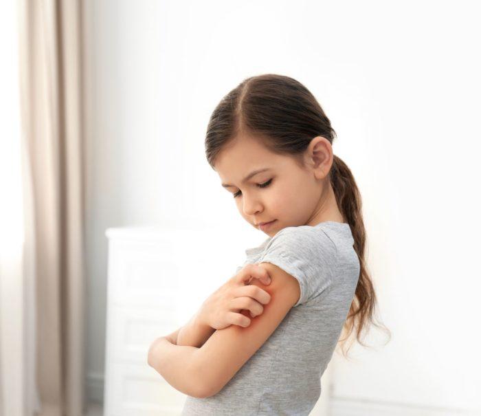 0511 do publikacji Pierwsze objawy atopowego zapalenia skóry - rozpoznaj i reaguj