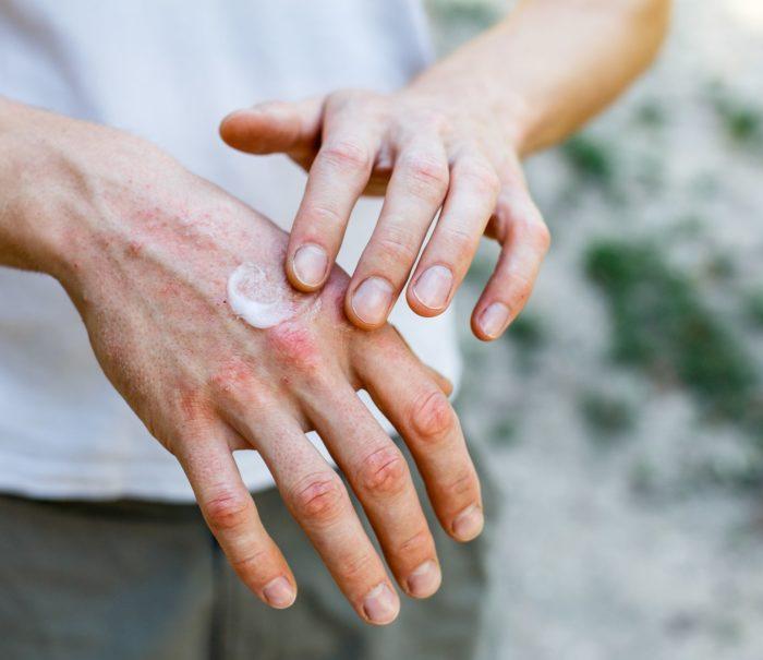 0611 do publikacji POPRAWIONE ES Codzienna troska o skórę z egzemą 2_korekta