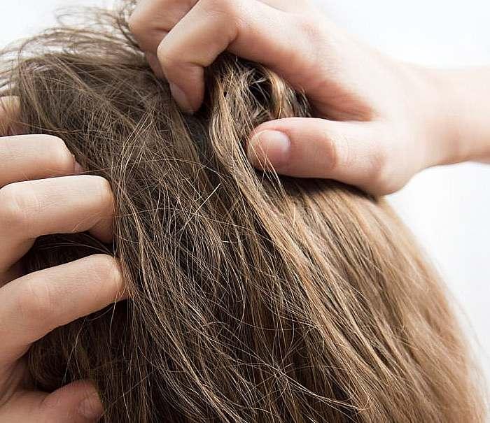 uporczywe swędzenie skory głowy możliwe przyczyny