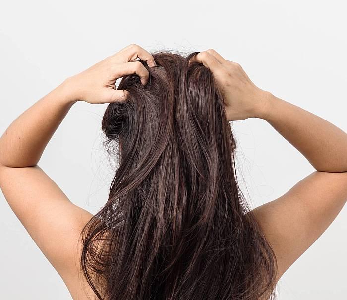 sposoby na swędzącą skórę głowy