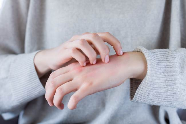 stop suchości i szorstkości sposoby na rogowacenie skóry zimą